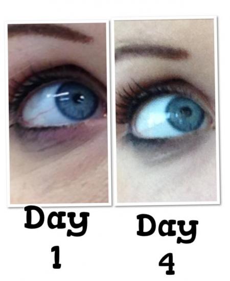clear-eyes
